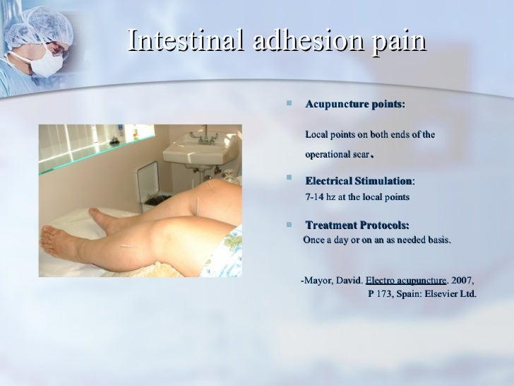 Intestinal adhesion pain <ul><li>Acupuncture points:  </li></ul><ul><li>Local points on both ends of the operational scar ...
