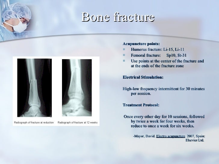 Bone fracture <ul><li>Acupuncture points:  </li></ul><ul><li>Humerus fracture: Li-15, Li-11 </li></ul><ul><li>Femoral frac...