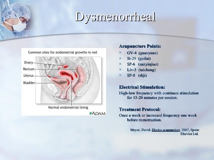 Dysmenorrheal <ul><li>Acupuncture Points:   </li></ul><ul><li>GV-4  (guanyuan) </li></ul><ul><li>St-29  (guilai) </li></ul...