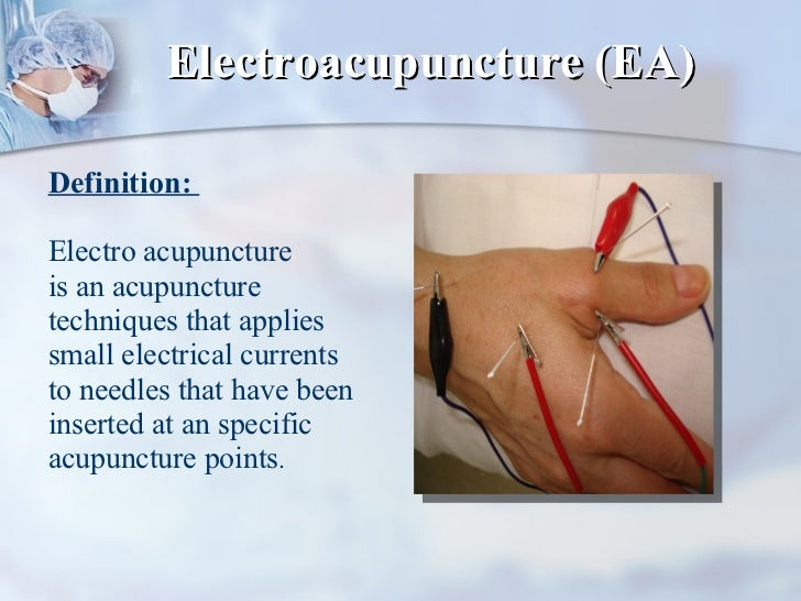 Electroacupuncture (EA) Definition:  Electro acupuncture  is an acupuncture techniques that applies small electrical curre...