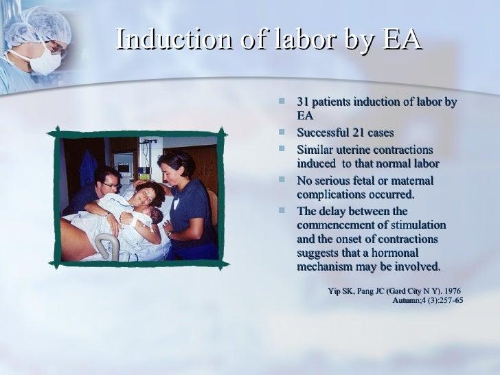 Induction of labor by EA <ul><li>31 patients induction of labor by EA </li></ul><ul><li>Successful 21 cases  </li></ul><ul...