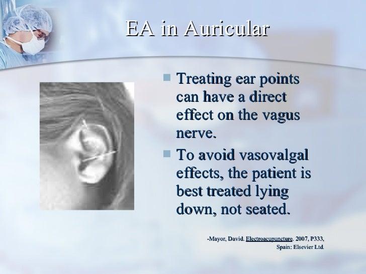 EA in Auricular <ul><li>Treating ear points can have a direct effect on the vagus nerve.  </li></ul><ul><li>To avoid vasov...