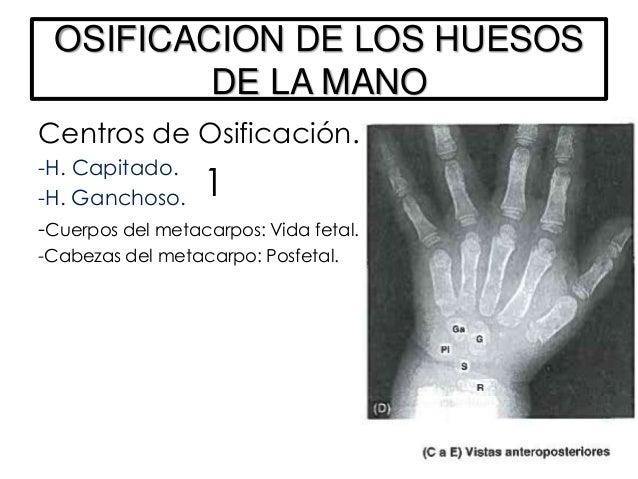 ANATOMIA DE SUPERFICIE DE LOS HUESOS DEL MIEMBRO SUPERIORClavícula: Extremidad acromial                         Palpable a...