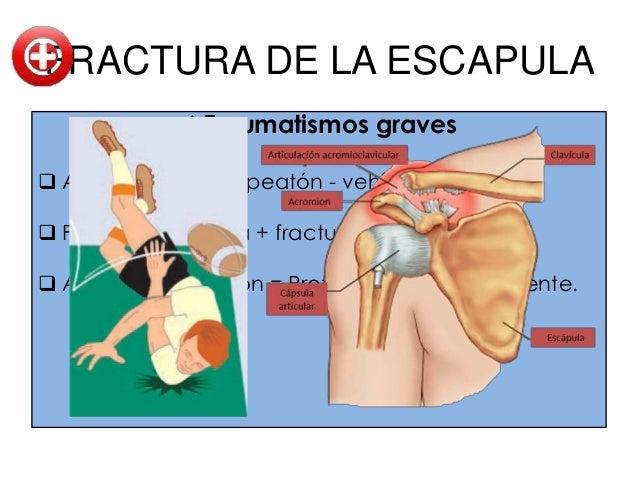 FRACTURAS DEL HUMEROFractura espiral del cuerpo del humero.                                 Traumatismo                   ...