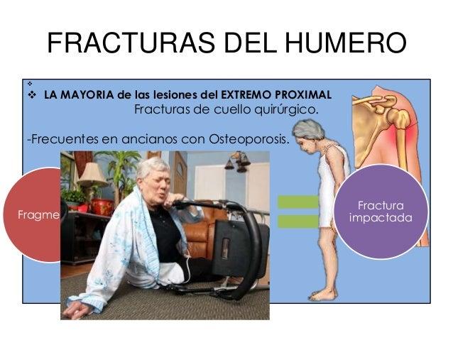 FRACTURAS DEL HUMEROFractura intercondilea del humero.                           Caída con el                             ...