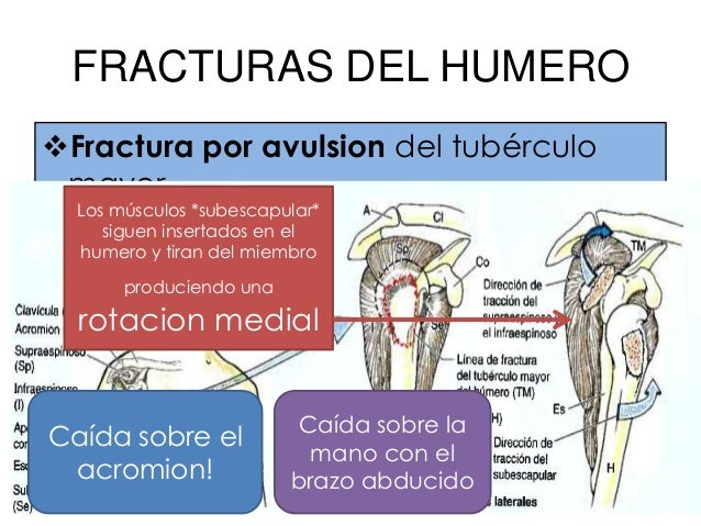 Nervios en contacto con humeroCuello quirúrgico: Nervio axilarSurco del nervio radial: Nervio radialExt. Distal del humero...