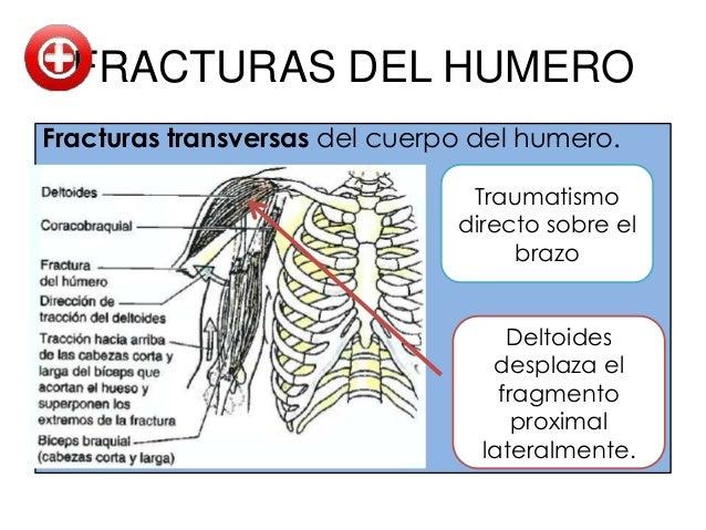 FRACTURAS DEL CUBITO Y              RADIO             Fuertes traumatismos• Traumatismo directo: Fracturas transversas en...