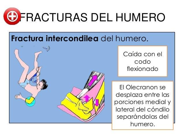 FRACTURAS DEL CUBITO Y                RADIO  Cuando se produce una fractura del extremo distal del radio del niño, la     ...