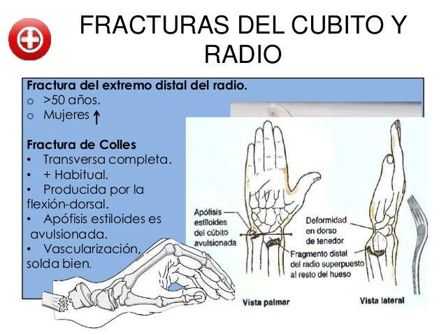 FRACTURAS DE LOS          METACARPIANOS• Sus fracturas consolidan con rapidez.• Los traumatismos con fuerte aplastamiento ...