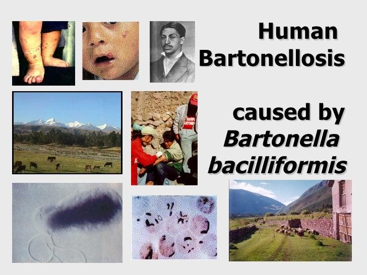 Human  Bartonellosis  caused by Bartonella  bacilliformis