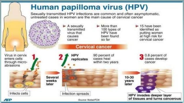 Папилломавирусы высокого канцерогенного