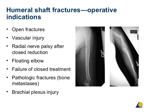 HUMERAL SHAFT FRACTURE TREATMENT EBOOK