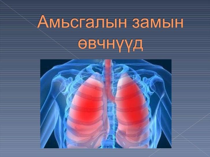 Амьсгалын тогтолцооны хамгийнтү гээмэл тохиолддог ө вчин болханиад юм. Энэ нь вирусээр үү сгэгддэгбө гөө д õàíèàäûã ¿ ¿ ñã...