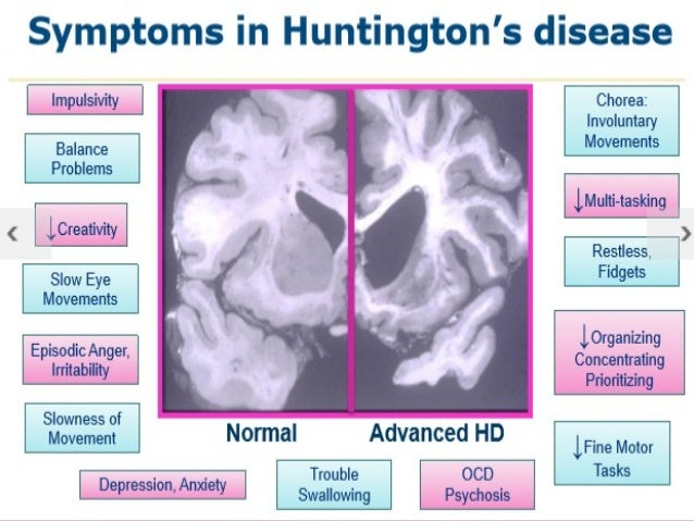 Image result for huntington's disease