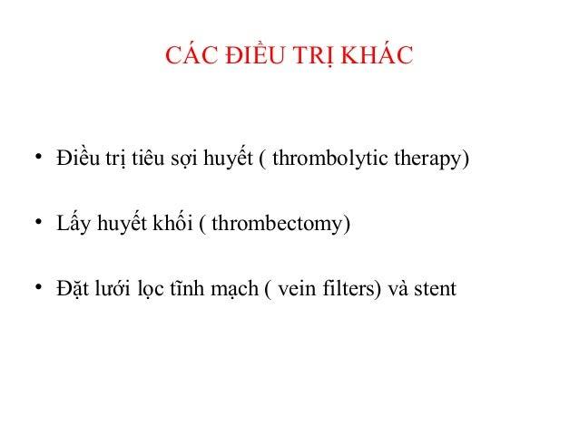 Huyết khối tĩnh mạch chi