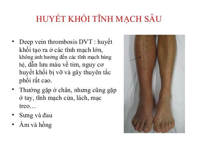 CÁC YẾU TỐ NGUY CƠ THƯỜNG GẶP • Bất động (immobility) : -Nằm viện -Liệt -Ngồi lâu • Phẫu thuật và chấn thương : -Đại phẫu ...