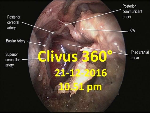 Clivus 360° 21-12-2016 10.51 pm