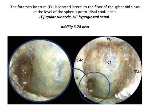 foramen lacerum
