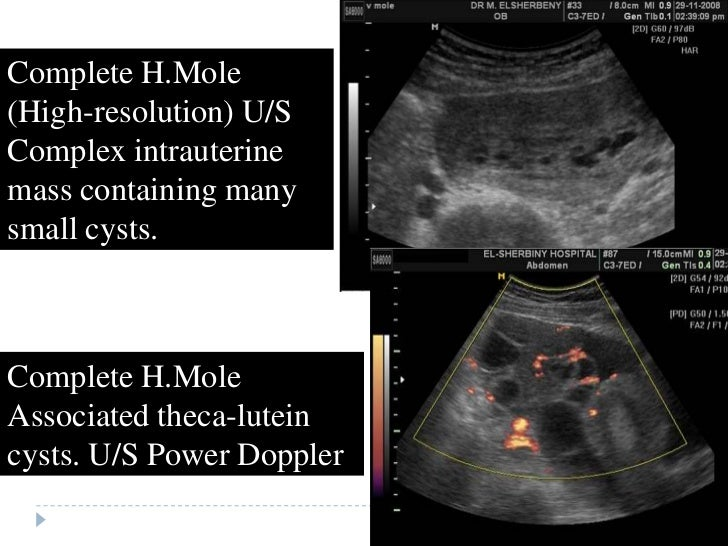 h mole Complete hydatidiform mole (chm) is a type of molar pregnancy and falls at the benign end of the spectrum of gestational trophoblastic disease epidemiology chm is the commonest type of.