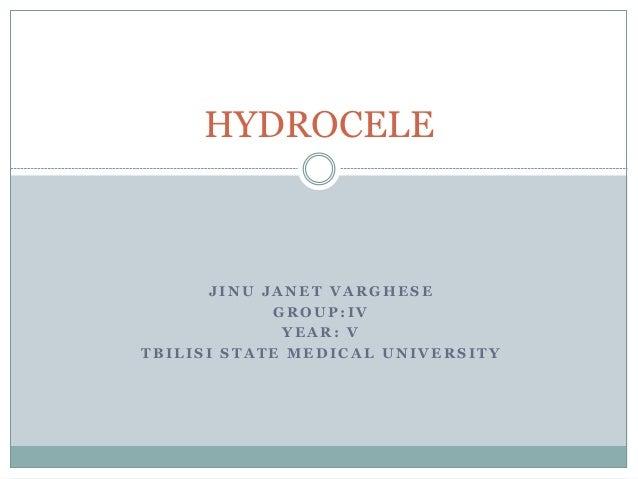HYDROCELE  J INU JANET VARGHESE  GROUP: IV  YEAR: V  TBILISI STATE MEDICAL UNIVERSITY