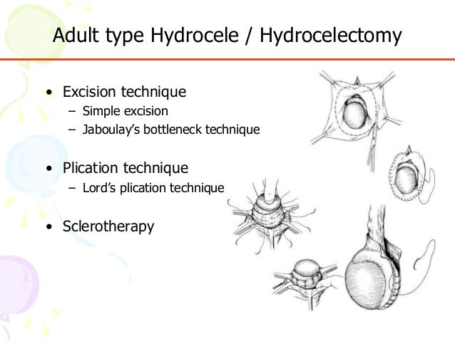 Hydrocelectomy Recovery Complications Procedure and More