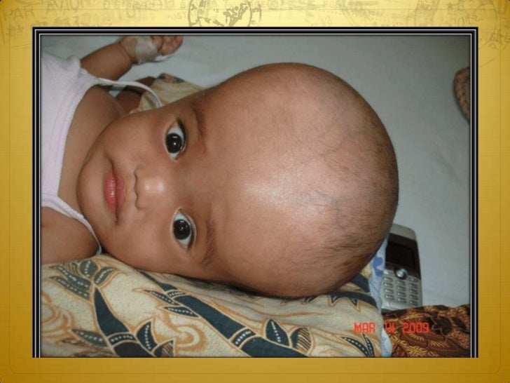 Arrested hydrocephalus This is a state of chronic hydrocephalus in which  the CSF pressure has returned to normal and the...