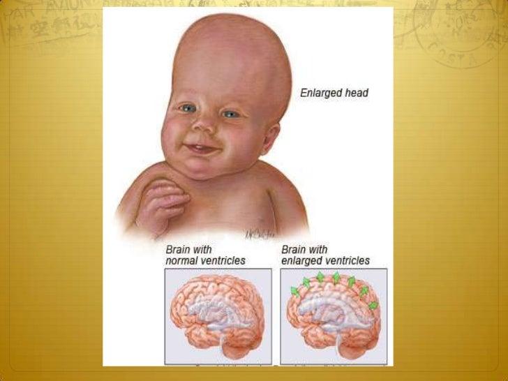 Normal-pressure hydrocephalusThe gradually progressive classic clinical 'triad' consists   of:   1 Dementia.   2 Ataxia.  ...