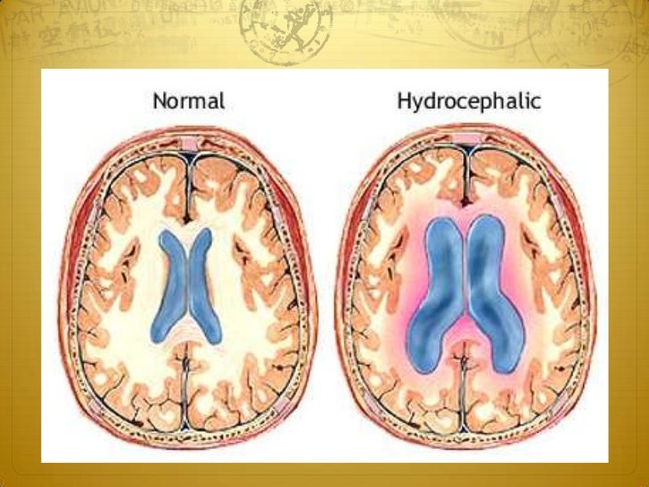 Definition Hydrocephalus is an abnormal enlargement of the ventricles  due to an excessive accumulation of CSF resulting ...