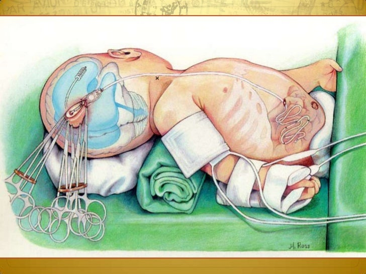 Surgery 6th year, Tutorial (Dr. Khalid Shokor Mahmood)