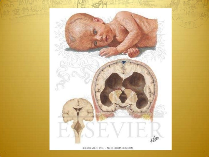 Classification Obstructive hydrocephalus: when there is an  obstruction to the flow of CSF through the  ventricular syste...