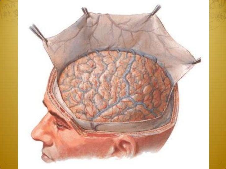 Adult hydrocephalus2. Gradual-onset adult hydrocephalus The symptoms of raised intracranial pressure are only  very gradu...