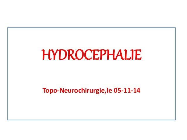 HYDROCEPHALIE Topo-Neurochirurgie,le 05-11-14