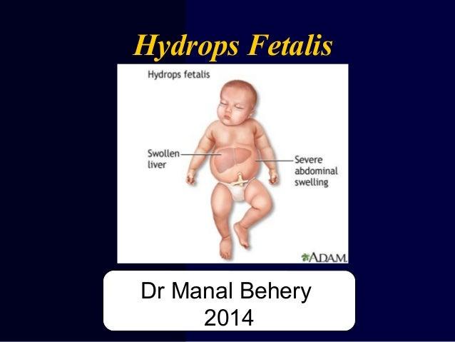 Hydrops Fetalis Dr Manal Behery 2014