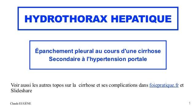 Claude EUGÈNE HYDROTHORAX HEPATIQUE Épanchement pleural au cours d'une cirrhose   Secondaire à l'hypertension portale 1 Vo...
