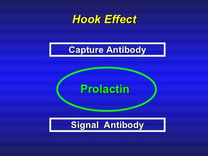 Hyperprolactinemia 3