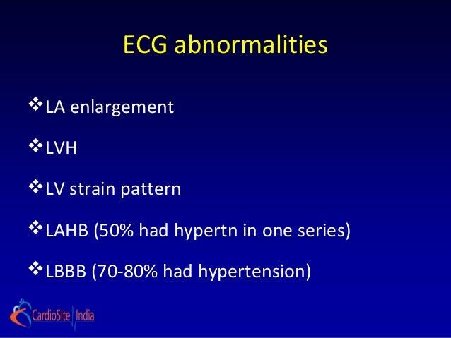 ECG abnormalitiesLA enlargementLVHLV strain patternLAHB (50% had hypertn in one series)LBBB (70-80% had hypertension)