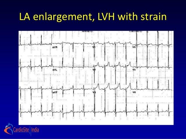 LA enlargement, LVH with strain