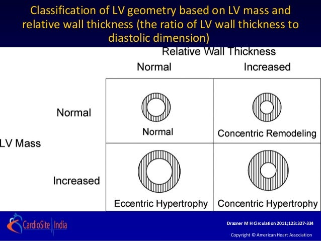 Classification of LV geometry based on LV mass andrelative wall thickness (the ratio of LV wall thickness to              ...