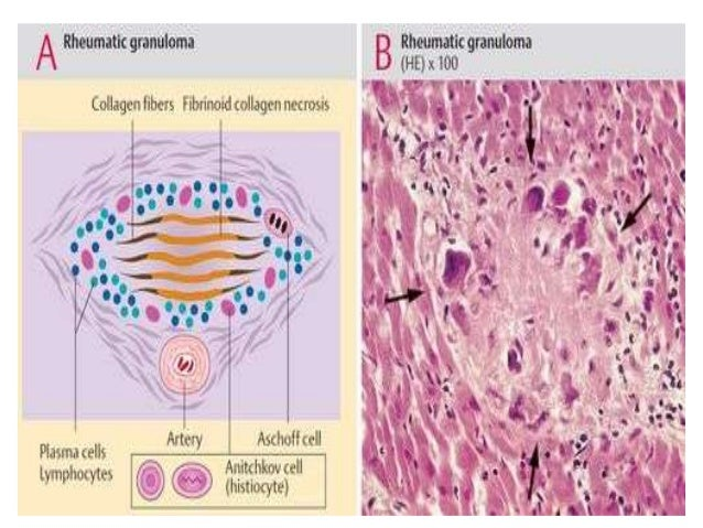  Chronic RHD is characterized by organization of acuteinflammation and subsequent fibrosis. valvular leaflets become thi...
