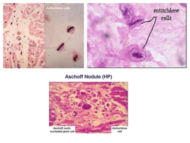 Pathogenesis: acute rheumatic fever is a hypersensitivity reactioninduced by group A streptococci. antibodies directed a...
