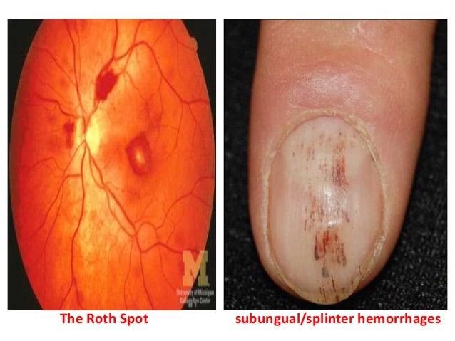 Hypertensive hd, and cardiomyopathy 3