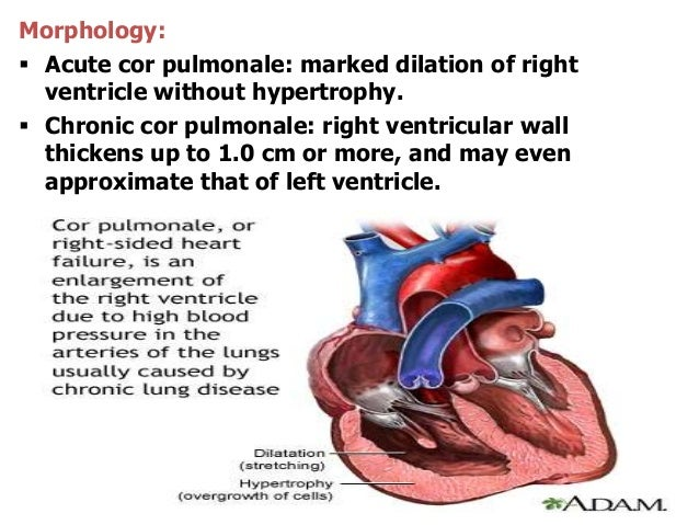 Morphology: Acute cor pulmonale: marked dilation of rightventricle without hypertrophy. Chronic cor pulmonale: right ven...