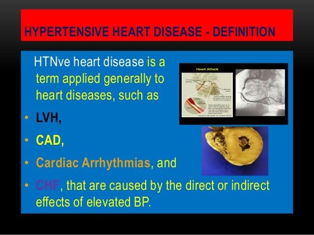 HYPERTENSIVE HEART DISEASE - DEFINITIONHTNve heart disease is aterm applied generally toheart diseases, such as• LVH,• CAD...