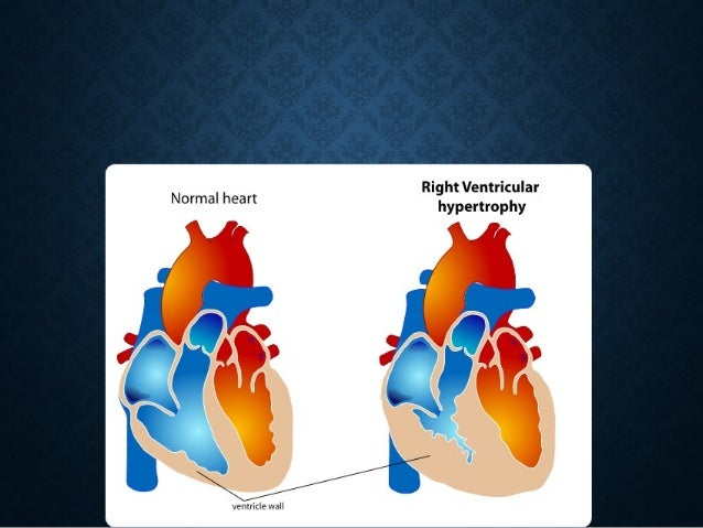 CLINICAL FEATURESCLINICAL FEATURES • Can precipitate cardiac decompensation with cardiacCan precipitate cardiac decompensa...
