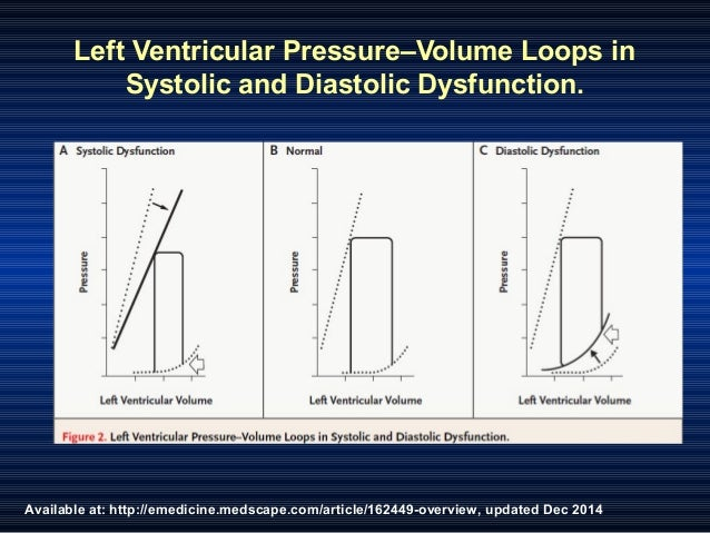 Available at: http://emedicine.medscape.com/article/162449-overview, updated Dec 2014 Left Ventricular Pressure–Volume Loo...