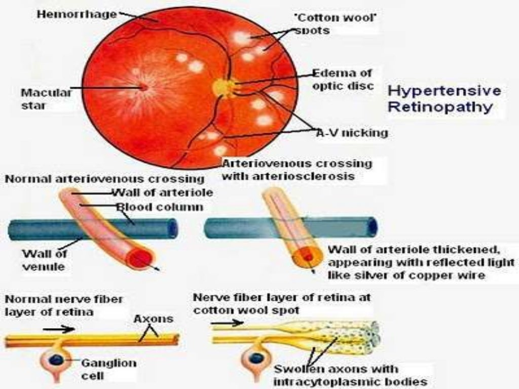 Copper Wiring Retina Hypertension And Ocular Changes 1024x768