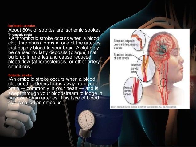 Гипертония артериальная чем вызвать инсульт - Инсульт ...