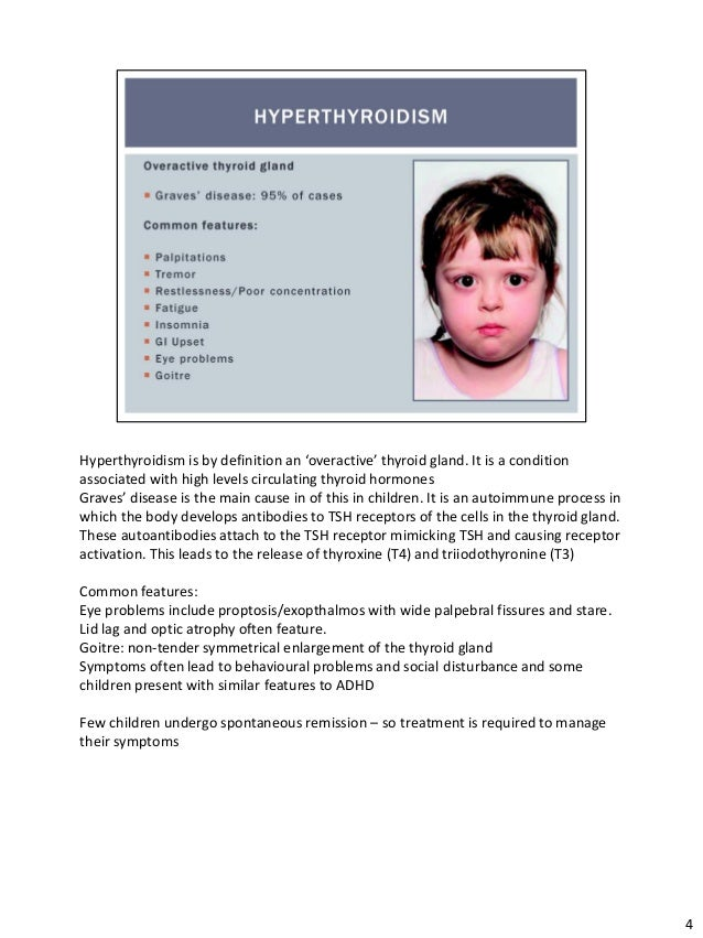Hyperthyroidism and the safety of radioiodine in children