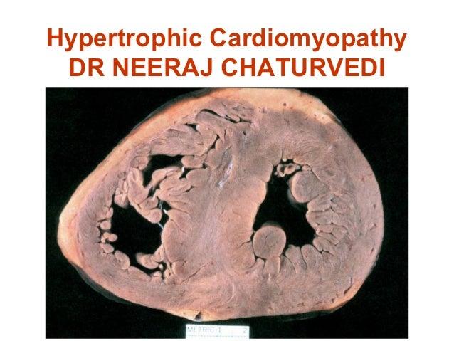 Hypertrophic Cardiomyopathy DR NEERAJ CHATURVEDI