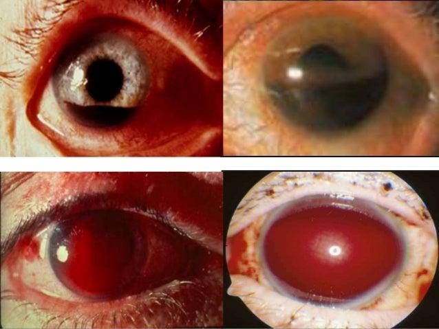 Hyphema  EyeWiki